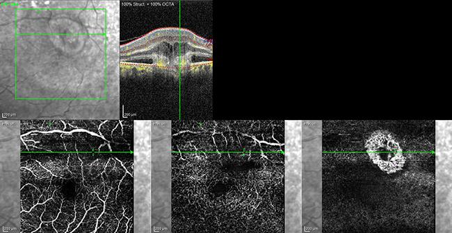 Optische Cohärenztomographie Angiographie