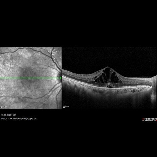 Oct Aufnahmen -Optische Kohärenztomografie
