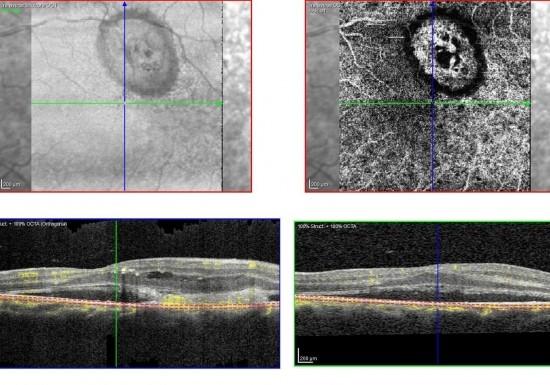 AMD OCT-Bild und OCT-Angiographie