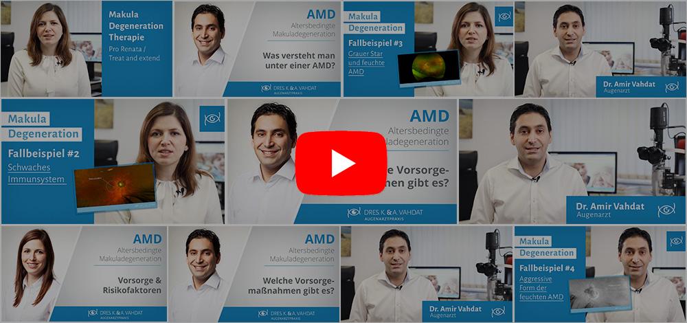 Videos Augenarzt Vahdat
